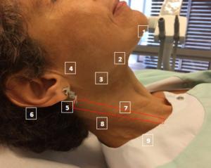 schéma des ganglions cervicaux